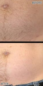 BELLY line laser hair removing permanently richmond hill