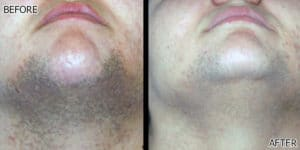 Cheek Hair Removal Laser IPL Deal Richmond Hill