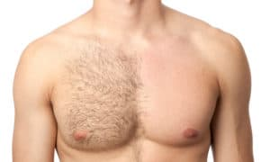 Special Laser Hair Removal Discounts for Full Body Men Women Richmond Hill Vaughan